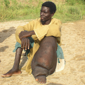 A man is sitting on the sandy ground, with his knees up. One of his legs and feet is very large and swollen through disease.