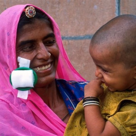 A close up picture of a mother holding a young child in her arms. Stuck to her cheek is a recently removed eye patch and she is smiling with joy.